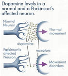 Addiction Dopamine Brain Central nervous system Dopaminergic Mood Neuron Parkinson's disease