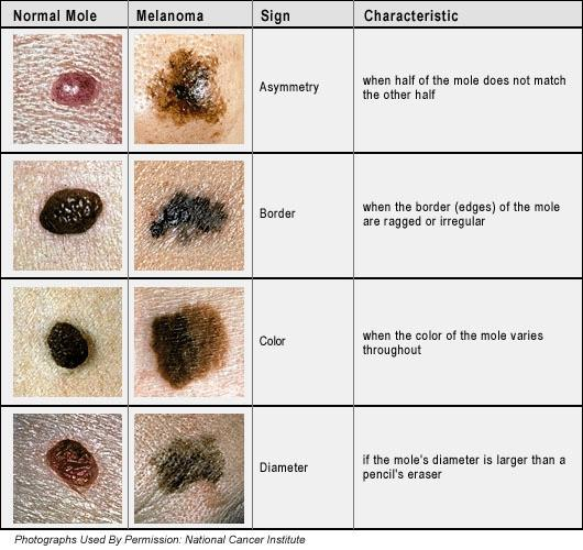 When you first look at a congenital nevus can you tell how much of a cancer risk it is?