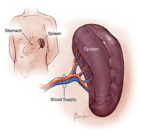 What are some of the complications of chemotherapy after splenectomy?