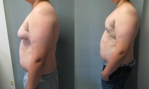 How much should my breasts increase in size if I have gynecomastia?