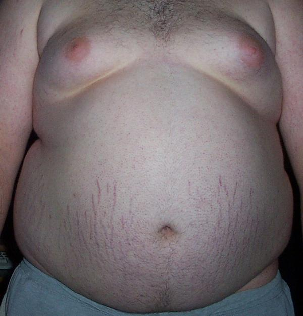 What can I do to get rid of the unwanted belly fat?