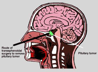 What is the process of pituitary tumor removal?