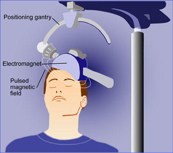 Can electrical stimulation of diffrent areas of the brain stop mental disorders?