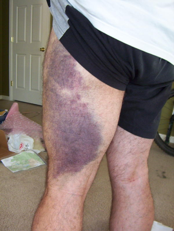 What is the best way to take care of a blue and black bruise?