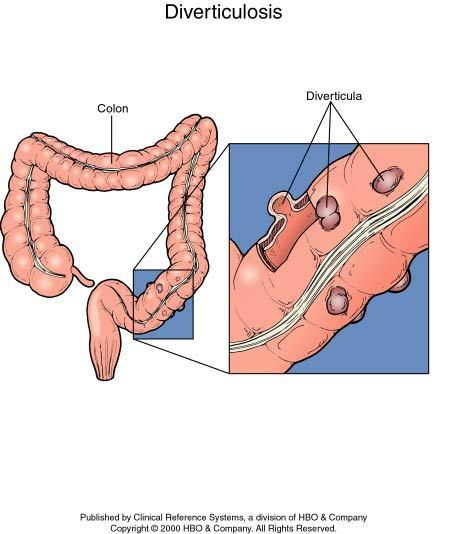 For about how long does diverticulitis accumulate in the body?