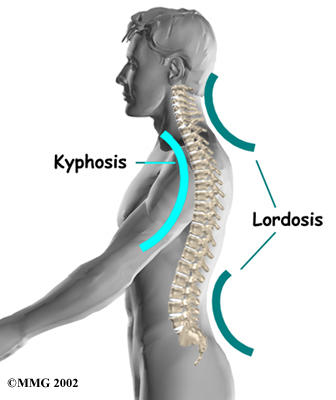 What is lordosis?