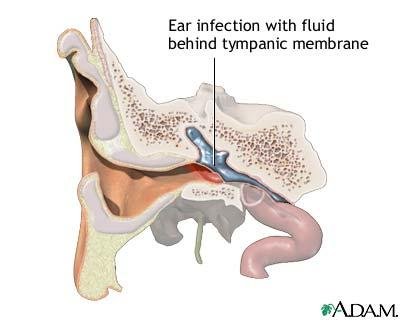 Middle ear infections in adults: is there a danger, any hearing loss, could it be permanent?