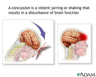 I heard a concussion gives you brain damage/ true?
