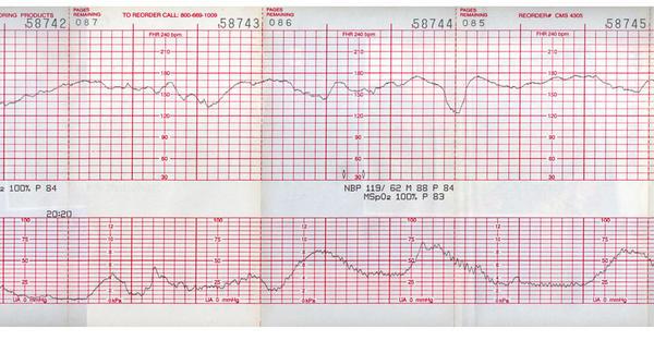 Heart Beat Chart Keninamas
