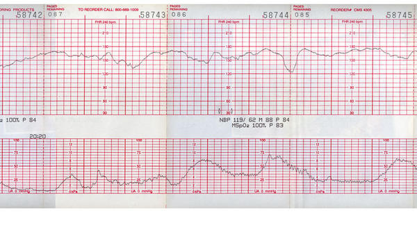 What is a normal fetal heart rate at term?