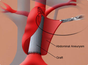 Does anyone know the risks of aortic aneurysm surgery?