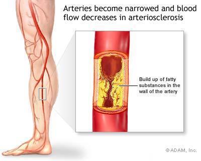 What is defined as peripheral vascular disease?