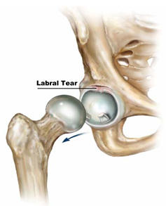 What do doctors do to treat torn cartilage in a hip?
