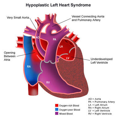 How does anyone know someone has hypoplastic left heart syndrome?