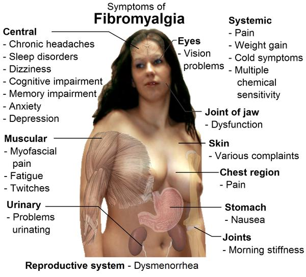 What are the similarities between?Polymyositis and fibromyalgia?
