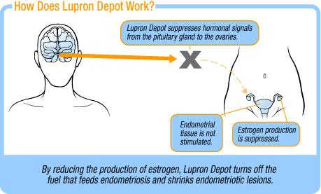 How does lupron (leuprolide) depot work for endometriosis?