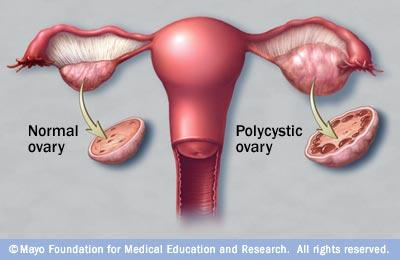 Why is there so much pain associated with polycystic ovary disease?