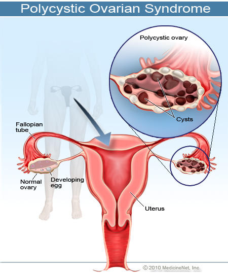 Are there any treatments for polycystic ovarian disease?