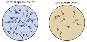 Can it mean that you have a low sperm count if your testicles look drained?