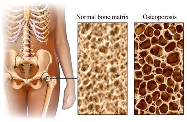Is it common to start experiencing osteoporosis at 46?