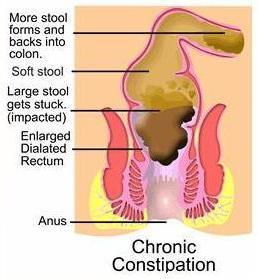 How can I cure a hemorrhoid from constipation?