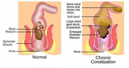 What do I do about constipation?