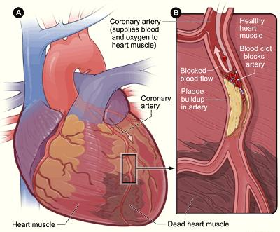 What are the symptoms of coronary heart disease and how do you get it in the first place?