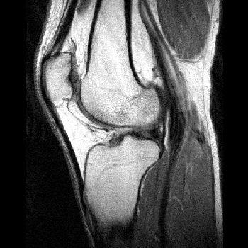 What can I do about a bad knee injury?  Will an MRI be likely