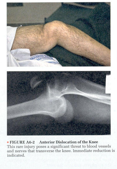 What is the recovery time on a dislocated knee?