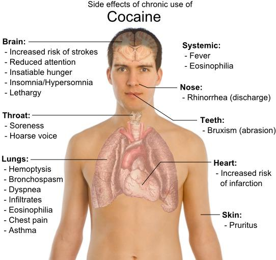My friends is taking 2 to 3 grams of cocaine daily from 6 months. When & what will be the side effect on his brain and body  in the long run?