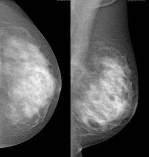 How does a doctor perform a mammogram if you have aa cup breasts?