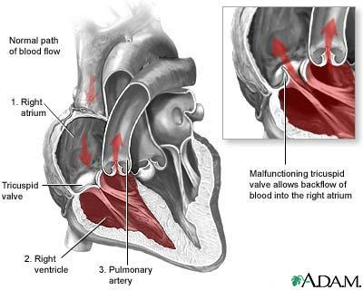 What is tricuspid regurgitation?