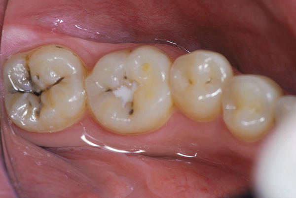 Is it possible to still get cavities if I've had a fissure sealant put on my teeth?