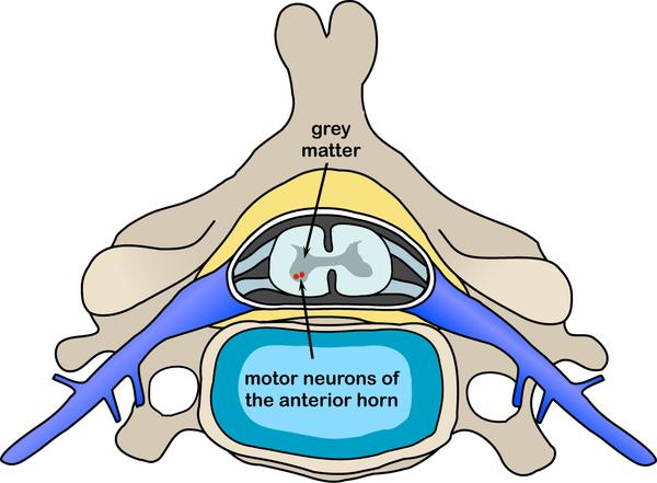 What is the difference between spinal & progressive muscular atrophy?