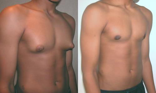 What causes male breast tissue enlargement?
