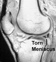 Is there a way to diagnose a meniscal tear without a mri?
