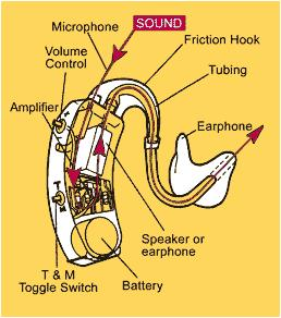 How does a hearing aid work?