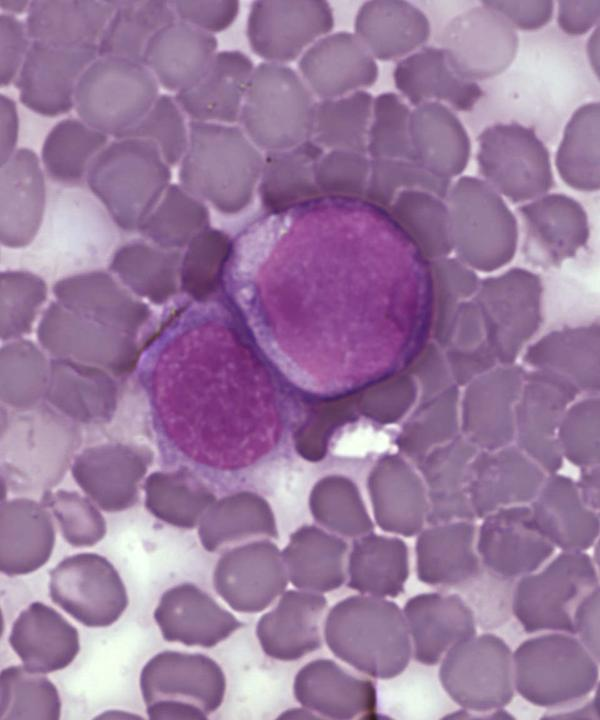 Are certain groups more susceptible to acute myeloid leukemia? Do some groups experience this disease differently than others?