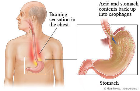 Will there ever be a cure for gastroesophageal reflux disease?