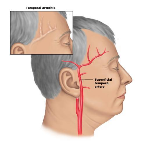 What is a sign of bad circulation in the face?