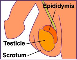 I have a very sharp constant pain on my left testicle what could be the cause of the pain?