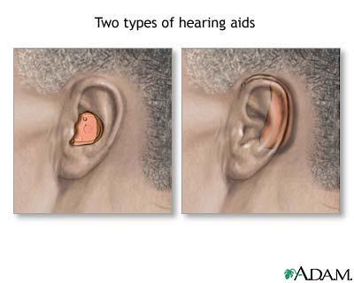Can a hearing aid help a person with mild hearing loss?