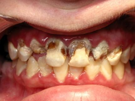 "What is ""meth mouth""?"