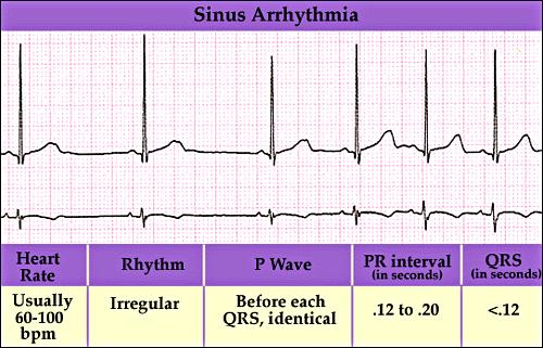When does a bradycardia turn into an arrhythmia?