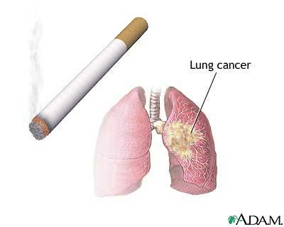 How is the lining of the lung, windpipe affected by smoking?