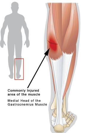 What is the best way to treat a strained calf muscle?