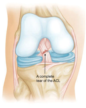 How long does it take to heal after a ligament injury?