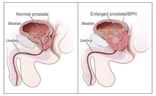 Can medicines make prostate enlargement worse?