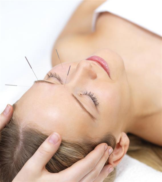 Is there any evidence that acupuncture actually works?