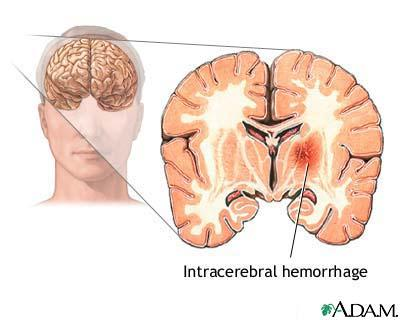 What is an intracerebral hemorrhage?